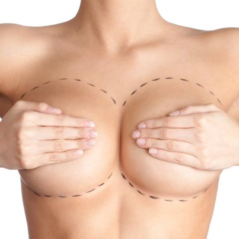 aumento-mamario
